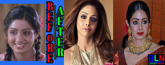 SRIDEVI Bollywood Actresses Before and After Plastic Surgery