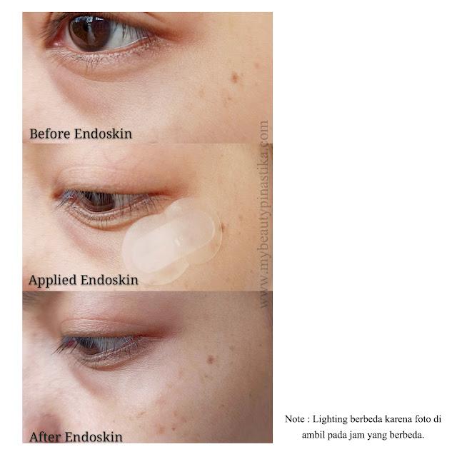Before After Endoskin