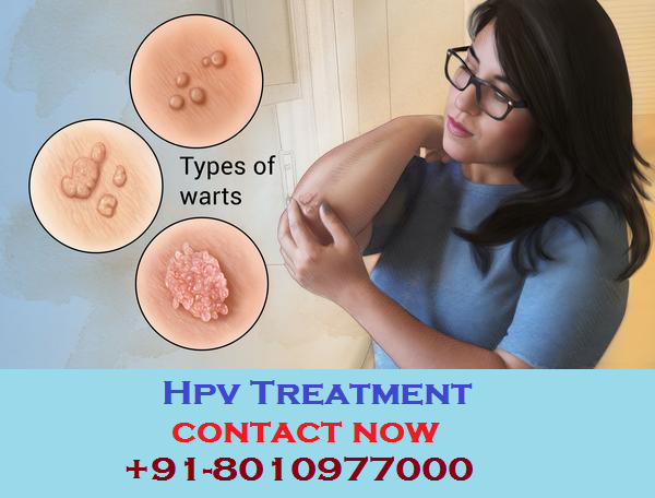 hpv treatment specialist