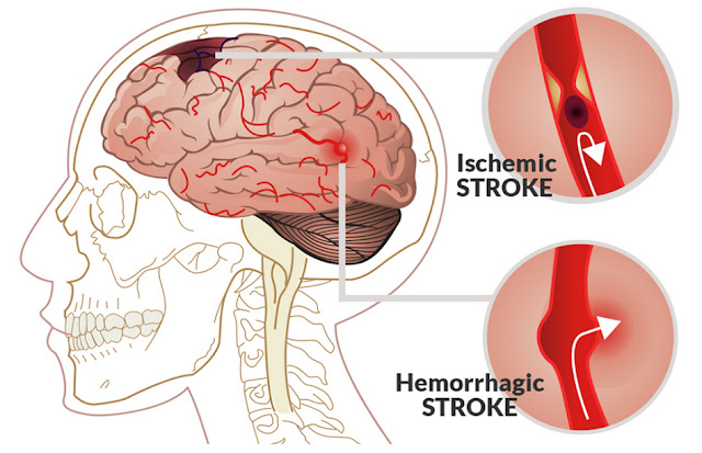 Symptoms of a mild stroke and Cause of the stroke