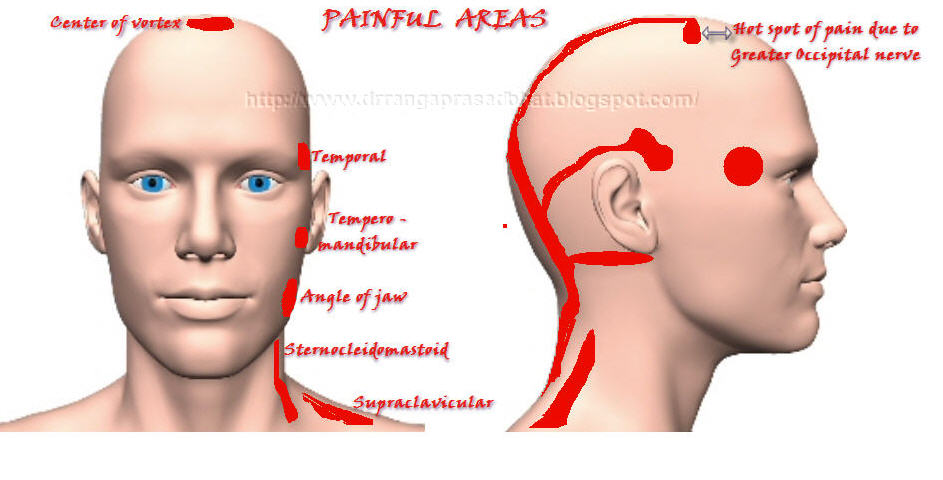 Marma & Ayurveda Chikitsa: Role of posture in the ...