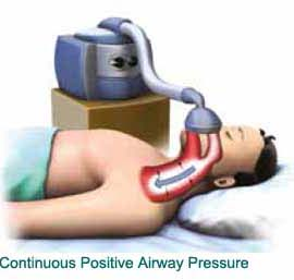 How Positive Airway Therapy works? – Which type of People requires PAP treatment?
