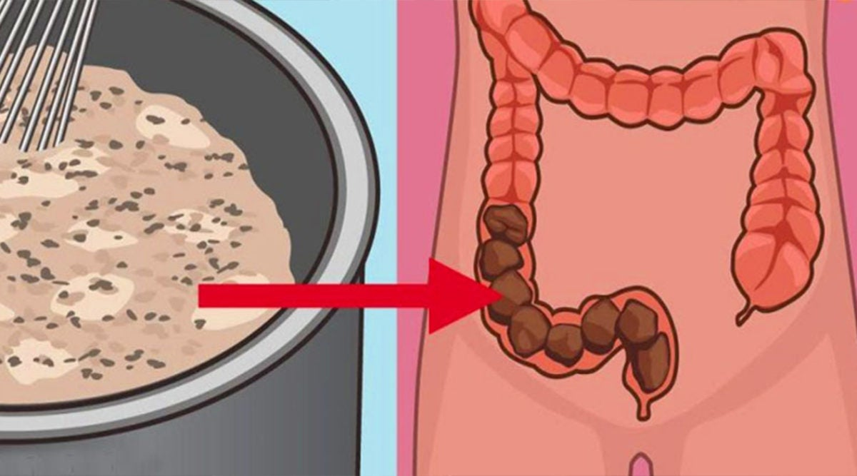 How To Clean 10 Pounds Of Toxins From The Colon