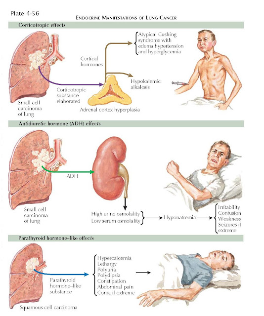 PARANEOPLASTIC MANIFESTATIONS OF LUNG CANCER