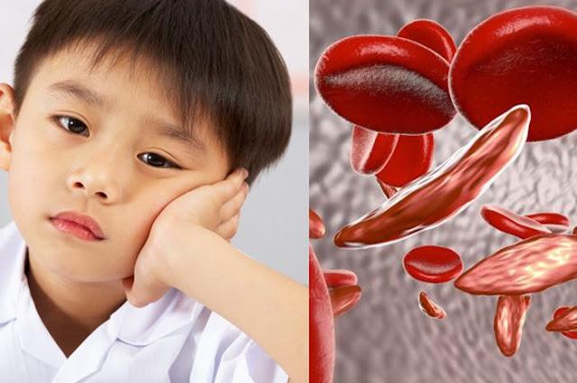 mengenal penyakit sel sabit