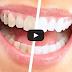 Zoom teeth whitening buffalo ny
