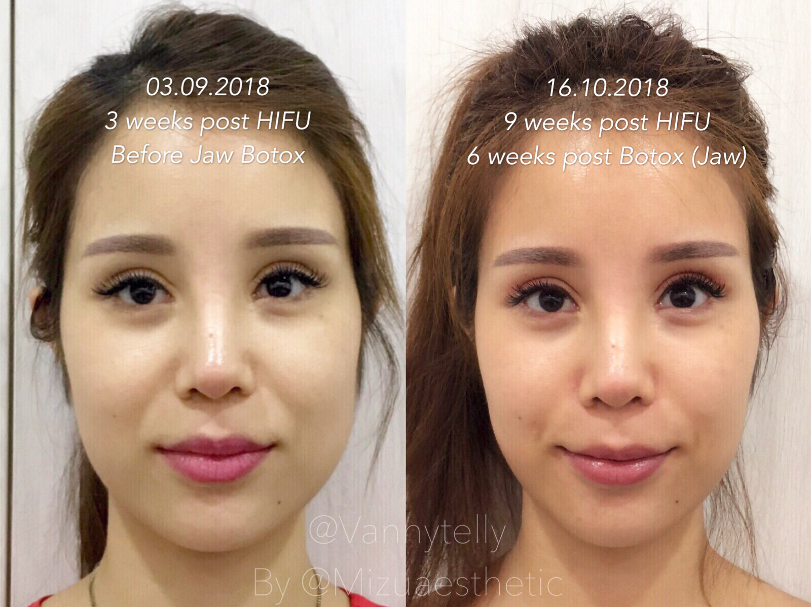 Vanny's Telling Everything : Non-Invasive Face Reshaping With Mizu