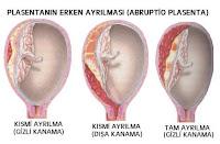 Penyakit Abruptio Plasenta