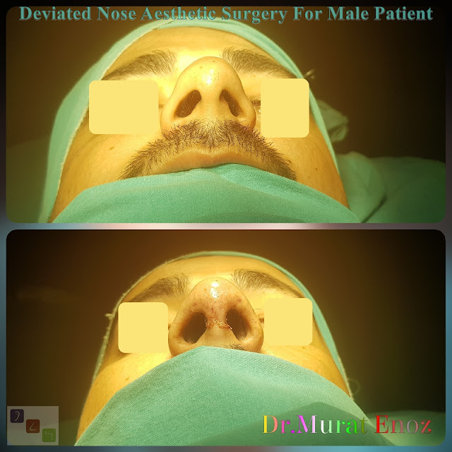 Deviated Nose Aesthetic Surgery, Asymmetric Nose Correction Operation,Rhinoplasty in Men Istanbul,