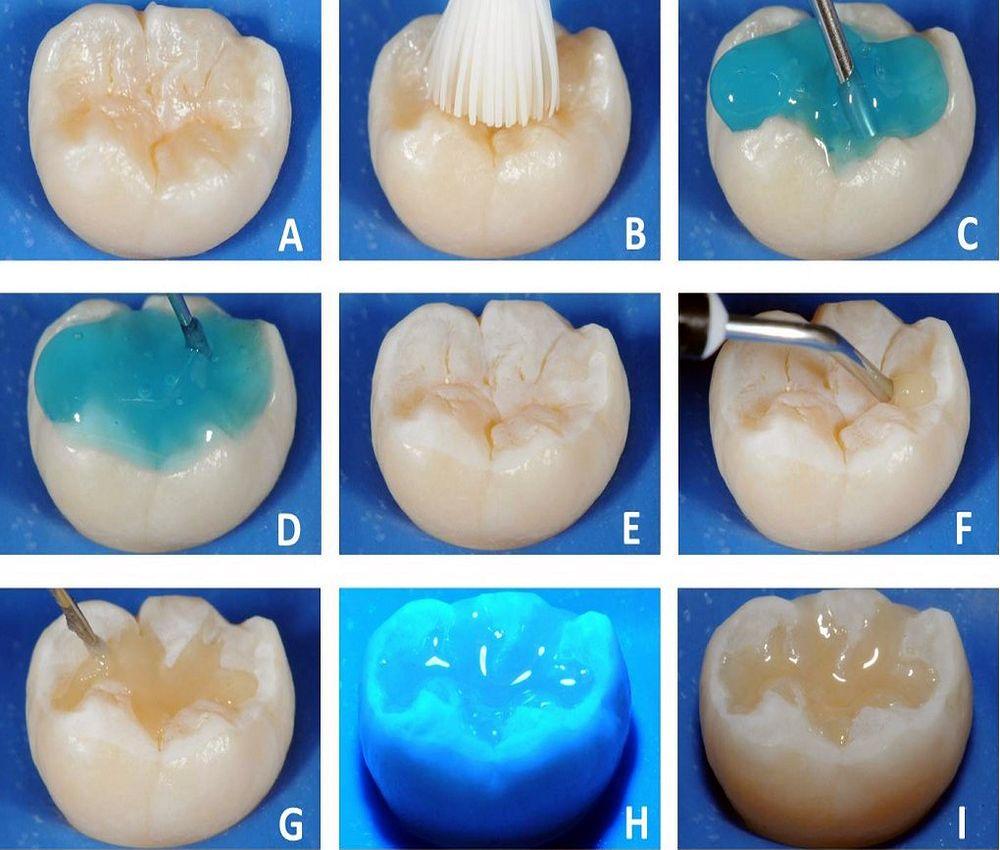 Sellante Dental