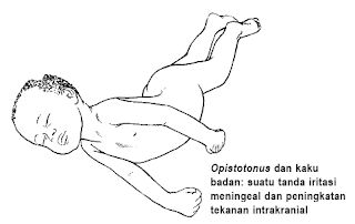 opitotonus-www.healthnote25.com