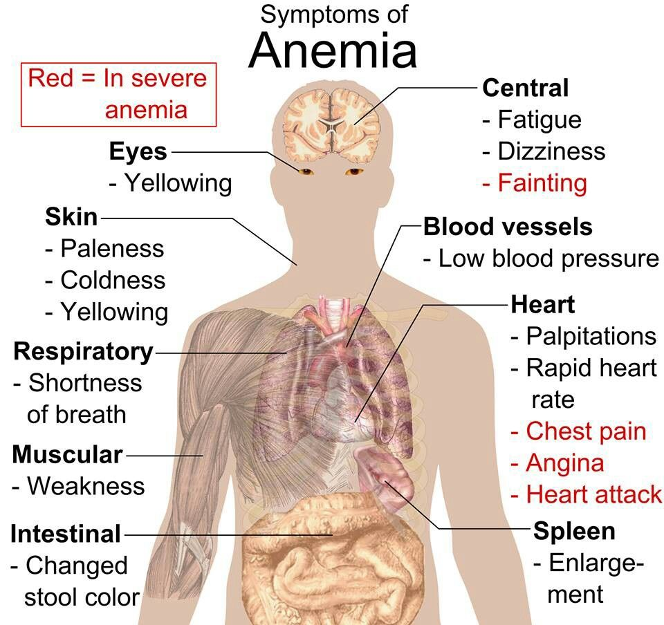 Poll : 1 in 5 Malaysians suffer from anaemia, posted on Friday, 12 June 2020