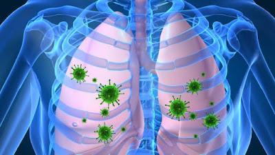 Obat Infeksi Paru Paru Yang Manjur 100 % Alami