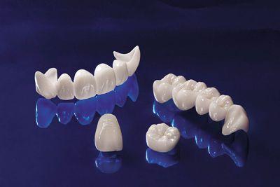 bọc răng toàn sứ giá bao nhiêu