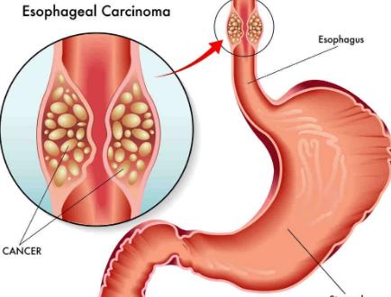 سرطان المرئ ..اعراضه واسبابه وطرق علاجه وكيفية الوقاية منه