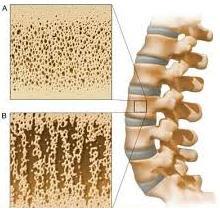 Tips untuk Menangani Osteoporosis
