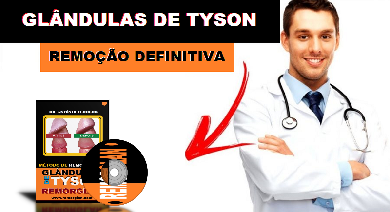 Como Remover Glândulas de Tyson