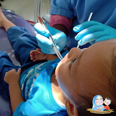gigi bolong anak