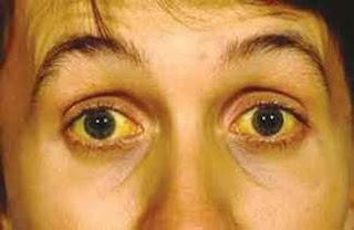 hepatit sarılık hastalığı