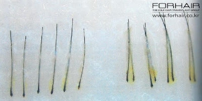 hair follicle collection, hair transplant korea, korean hair transplant, hair surgery info