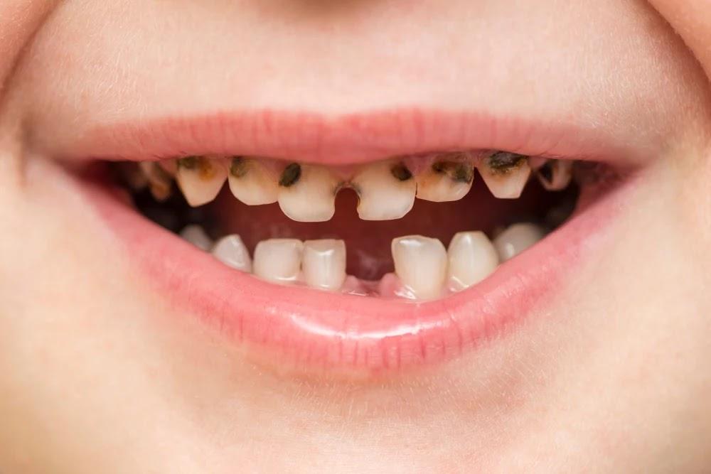 تسوس الأسنان عند الأطفال 2 سنوات .