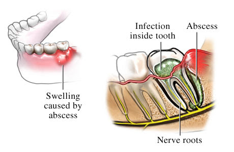 Amazing Home Remedies for Abscessed Tooth