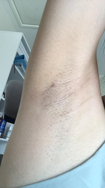 laser hair removal Oxford,Oxfordshire laser hair removal,bare UK Oxford review,bare UK Oxford reviews,bare UK prices,permanent hair removal Oxford,