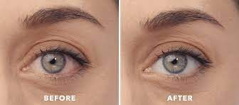 Pros and Cons of Lumify Eye Drops