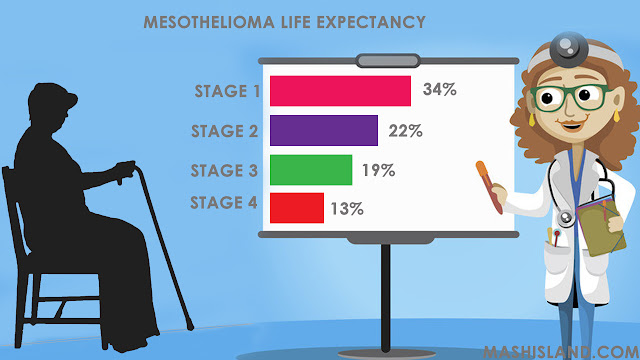 Mesothelioma Life Expectancy and Survival Statistics