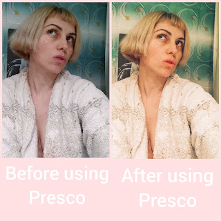 Before And After Using Presco
