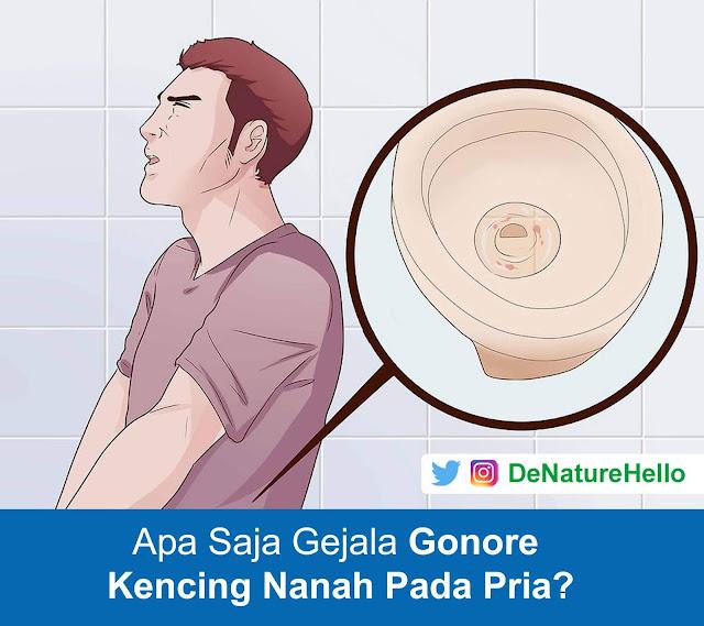 Gejala Kencing Nanah Gonore Pada Pria