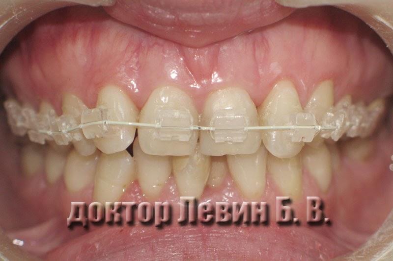 Состояние зубов через месяц после начала лечения брекетами, фотография.