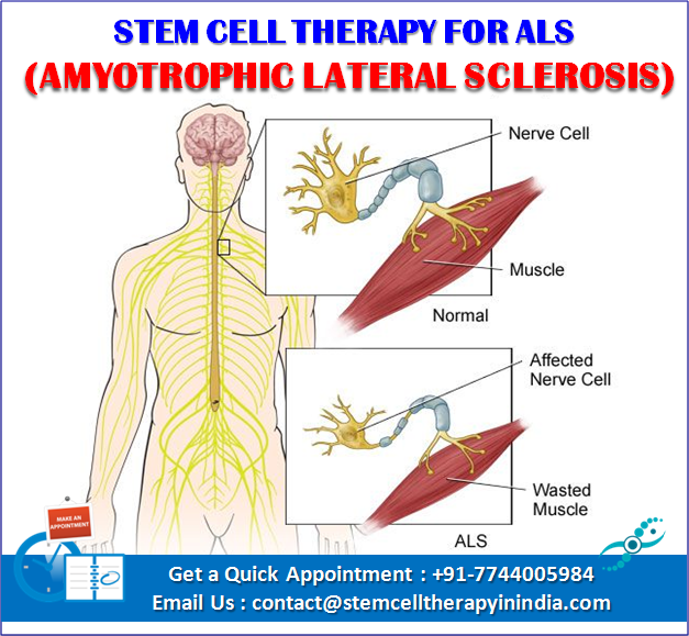 ALS Stem Cell Therapy in India