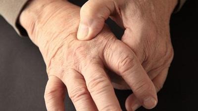 5 Tanaman Obat Asam Urat dan Rematik