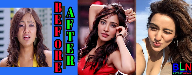NEHA SHARMA Bollywood Actresses Before and After Plastic Surgery