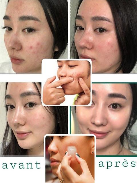 L'utilisation de la glace pour la peau est le meilleur traitement de beauté