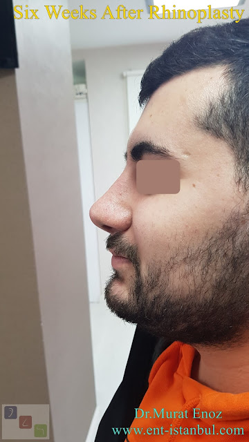 Male nose job Turkey. Nose aesthetic surgery for men,Rhinoplasty in Men Istanbul,