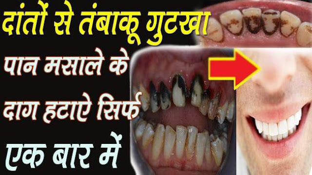 If-your-teeth-have-become-yellow-due-to-eating-gutkha-do-this-easy-solution