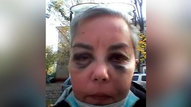 """""""Рёбра болели неделю"""": Дочь актёра Мерзликина избил бездомный, которому она помогла"""
