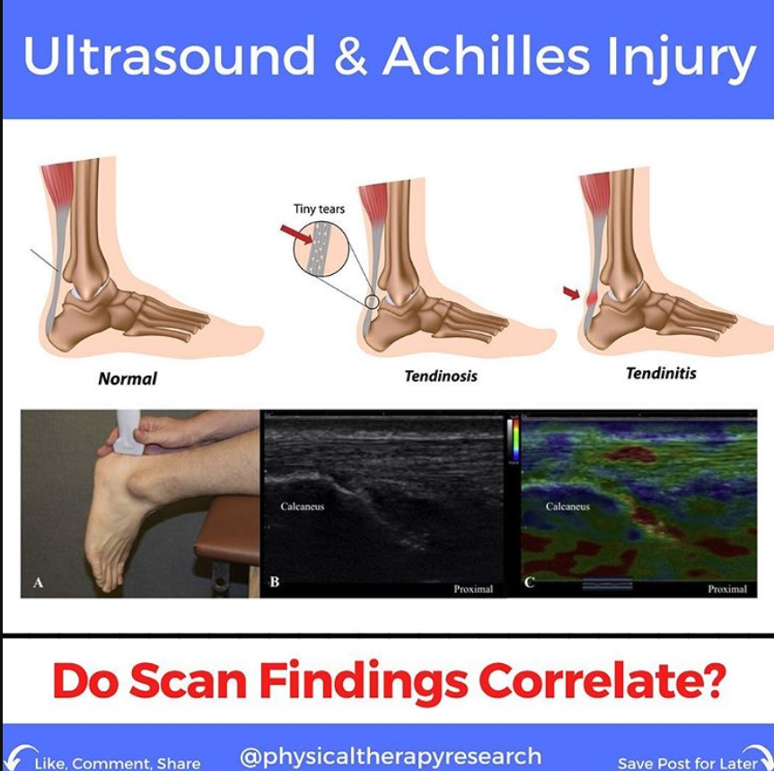 Ultrasound and Achilles Injury: Do Scan Findings Correlate? - themanualtherapist.com