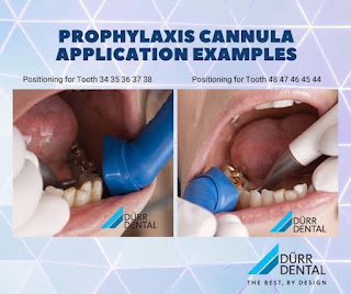 Durr Prophylaxis Cannula