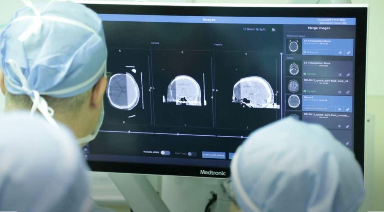 """الأولى من نوعها في الإمارات..""""كليفلاند كلينك أبوظبي"""" يجري للتحفيز العميق للدماغ"""