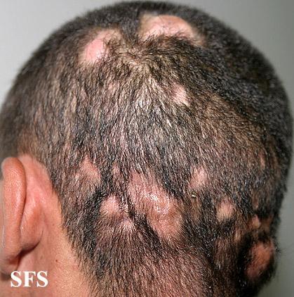 White Bumps Scalp