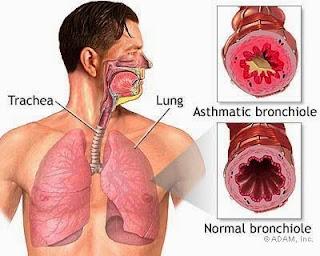 obat alami inflamasi saluran nafas