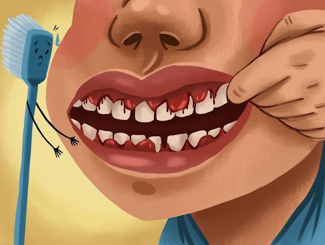 मसूड़ों से खून आना [ Bleeding Gums ] की समस्या के परिचय एव चिकित्सा ? Introduction to the problem of bleeding gums [Bleeding Gums] and medicine?
