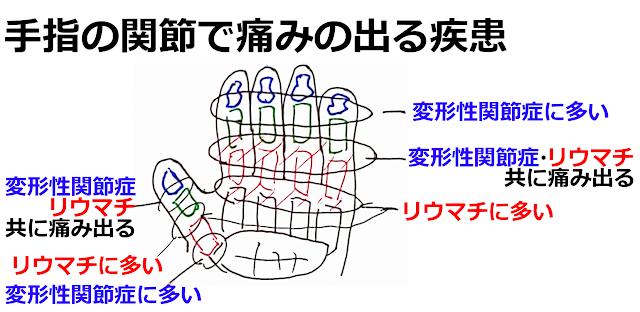 手指の関節で痛みの出やすい疾患 神戸やすらぎ訪問マッサージ