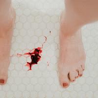 Mulheres em todo mundo estão sofrendo mudanças menstruais após vacinas COVID