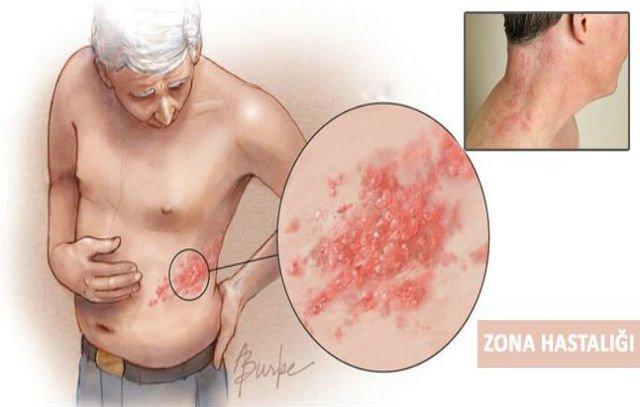 Zona Hastalığı Resimleri