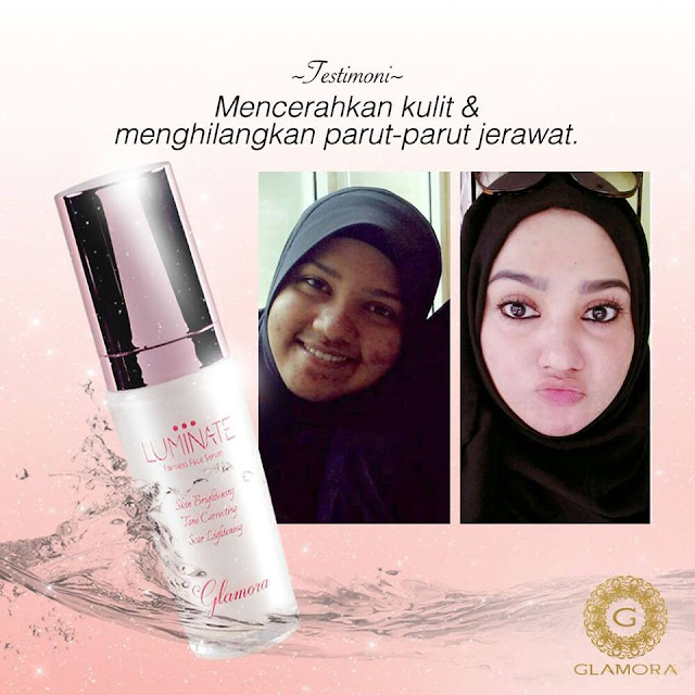 testimoni glamora luminate, review glamora luminate, pengguna glamora luminate