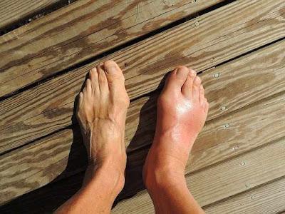 علاج كدمات مشط القدم